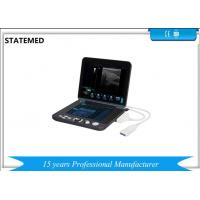 Quality Black And White Laptop Portable Ultrasound Scanner For Diagnostic for sale