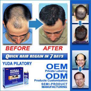 Quality YUDA hair enhancer/hair pilatory/hair growth solution for sale