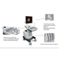 China Color Doppler ultrasound series wholesale